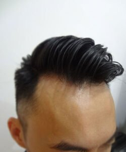 HTS,the best Hair Clinic Malaysia