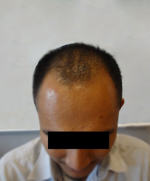 HTS,Hair Transplant around KLCC