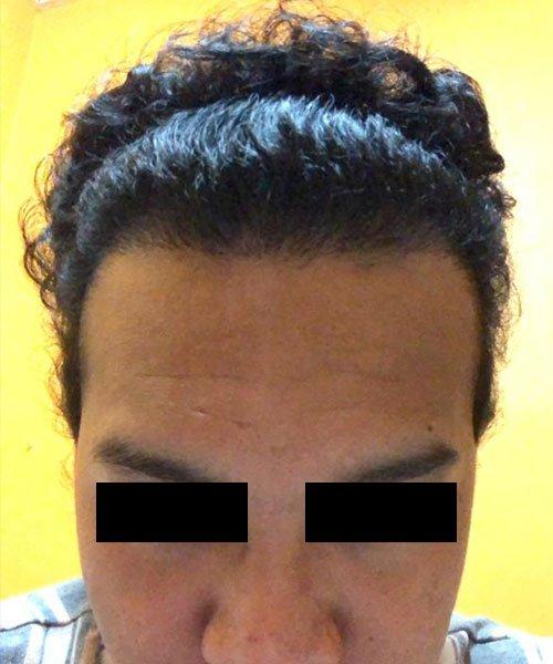 HTS- FUE Hair Transplant Malaysia