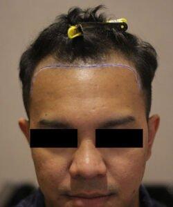 HTS-Hair Transplant around KLCC