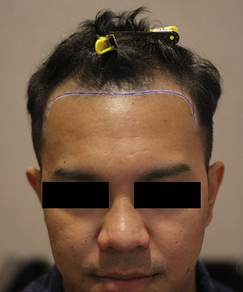 HTS-Hair Transplant around KLCC