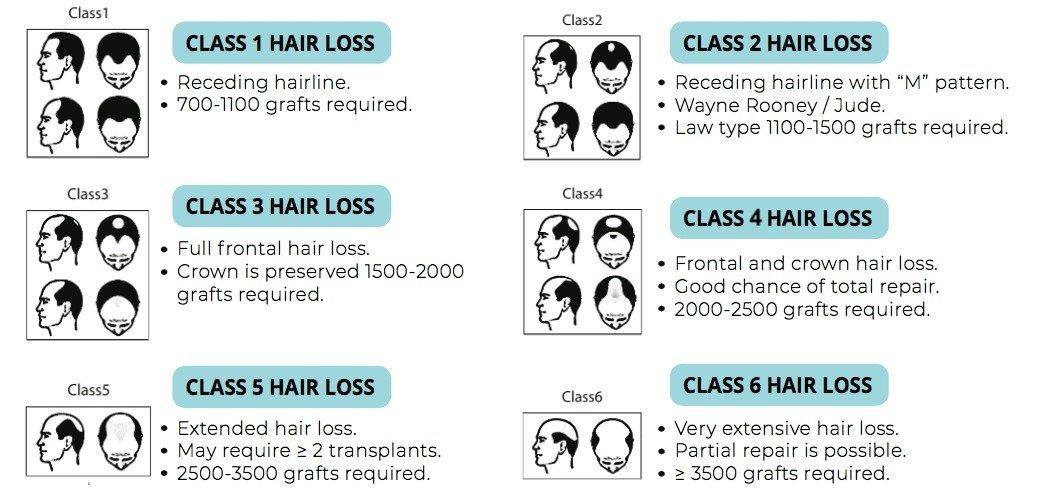 HTS, Hair Clinic Malaysia