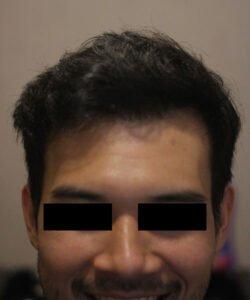 HTS-Micropigmentation in KL
