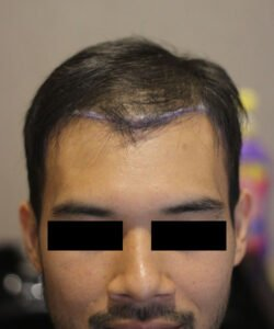 hts-Best Hair Transplant Doctor In Kuala Lumpur