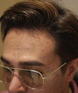 FUE Hair Transplant Malaysia