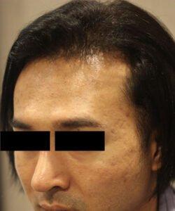 HTS-FUE Hair Transplant Price