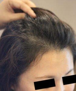 HTS,Hair Transplant Malaysia