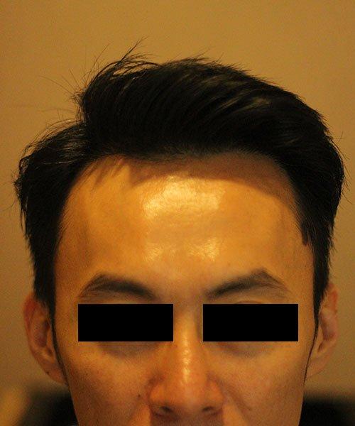 HTS,Hair Clinic Kuala Lumpur