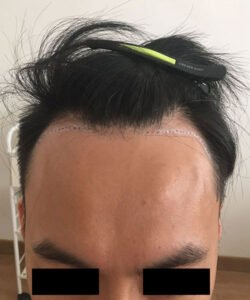 HTS,Hair Transplant Solutions