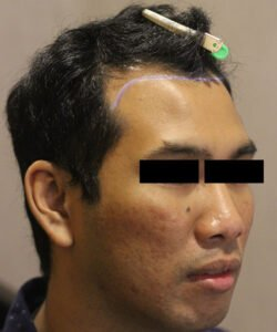 HTS- Hair Transplant Kuala Lumpur