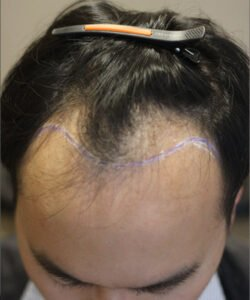 HTS-Micropigmentation in Malaysia