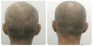 hts, Hair Transplant Kuala Lumpur