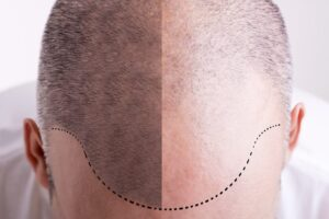 HTS offers the best FUE Hair Transplant Malaysia